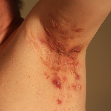 hidradenitis suppurativa behandling